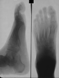 Nodule on dorsum. Atrophy of hind and mid-foot. Some dorsal collapse