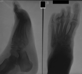 Unhealed fracture of distal of metatarsal 4 with angulation and destruction of its phalanges