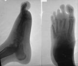Destruction of tarso/metatarsal and metatarso/phalangeal joints: Atrophy and destruction of phalanges