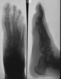 Destruction of distal ends of metatarsals 4&5 and their phalanges