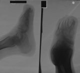 concentric diaphyseal remodelling of ALL metatarsals: destruction of ALL phalanges