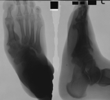collapse of mid-foot