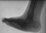 collapse of longitudinal arch: boat shaped foot
