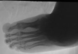 concentric diaphyseal remodelling of most phalanges: destruction and atrophy of distal ends of  metatarsi