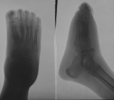 truncation of foot with destruction of intermediate and distal phalanges: talar/calcaneal joint damage