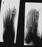 diffuse atrophy of distal phalanges: concentric diaphyseal remodelling proximal phalanges, especially hallux,
