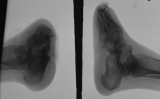Both reduced to stumps, with loss of all phalanges, concentric diaphyseal remodelling metatarsals and fusion of tarsals: left calcaneus absorbing