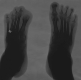 Loss of distal phalanges: advanced concentric diaphyseal remodelling of metatarsals and proximal phalanges