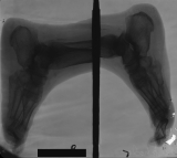 collapse of longitudinal arch: concentric diaphyseal remodelling and  contraction deformation of phalanges