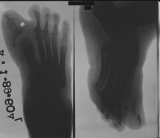Gross enlargement of soft tissues of foot es[pecially around hallux: destruction and concentric diaphyseal remodelling of all Phalanges: