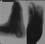 Collapse of longitudinal arch: gross thickening of sole: concentric diaphyseal remodelling and destruction of all phalanges and distal of metatarsals