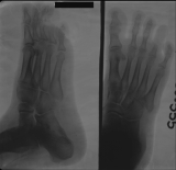 destruction and concentric diaphyseal remodelling of phalanges