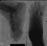 destruction and concentric diaphyseal remodelling of phalanges and metatarsals: collapse of longitudinal arch: Thickening of sole