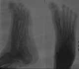concentric diaphyseal remodelling and destruction of phalanges