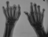 loss of most distal and intermediate phalanges: concentric diaphyseal remodelling proximal phalanges