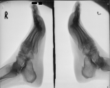 spur on lower surface of left calcaneus, otherwise no overt pathology