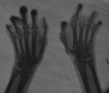 claw hands: loss of most phalanges on left hand