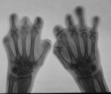 advanced concentric diaphyseal remodelling/ loss of  phalanges
