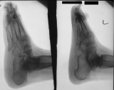 concentric diaphyseal remodelling phalanges and metatarsals: collapse of longitudinal arch: contraction deformation and elevation of toes