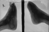 loss of p[halanges: collapse of longitudinal arch: absortion of left calcaneus