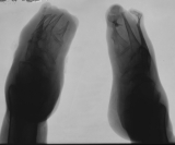destruction of phalanges:advanced concentric diaphyseal remodelling of metatarsals