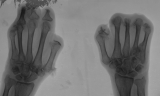 claw hands: concentric diaphyseal remodelling/destruction of all phalanges