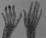 claw hand left: diffuse atrophy of distal phalanges