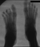 contraction deformity of 2nd and third toes of left foot with concentric diaphyseal remodelling of phalanges