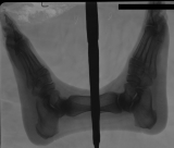 collapse of longitudinal arches: concentric diaphyseal remodelling of phalanges