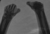 left hand - loss of all phalanges, advanced concentric diaphyseal remodelling of metacarpals:  right hand - complete loss of metacatrpals 2-5, fusion of carpals