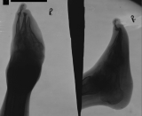 pointed foot, with loss of all phalanges and metacarpals in rays 4,5: concentric diaphyseal remodelling metatarsals 1-3