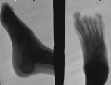 loss of most distal phalanges:: concentric diaphyseal remodelling and joint fusion of metatarsals