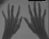 early clawing of left hand
