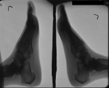 early loss of distal phalanges