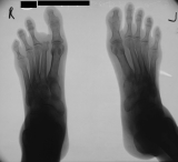 loss of right second toe