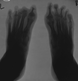 loss/concentric diaphyseal remodelling of all phalanges: fusion of metatarso-phalangeal joints: