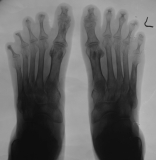 right foot -  destruction/concentric diaphyseal remodelling of intermediate and distal phalanges