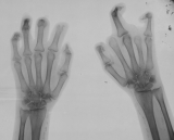 destruction/concentric diaphyseal remodelling of intermediate and distal phalanges: loss of proximal phalanges Rt rays 2,4