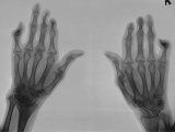 early claw hands: concentric diaphyseal remodelling of 3 phalanges of left hand