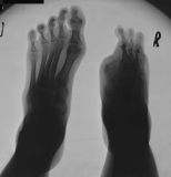 right foot - loss of rays 1,2: concentric diaphyseal remodelling of remaining phalanges