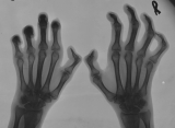 claw hands: subluxation of joints