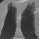 advanced concentric diaphyseal remodelling of metatarsals and phalanges