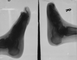 clubbing of right foot, with loss of all phalanges and distal of metatarsals, absorbtion and rounding of calcaneus: left foot- earlier stage, some tarsals still present