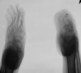 left foot - diffuse atrophy and concentric diaphyseal remodelling of phalanges and metatarsals, fusion of tarsals: right foot - conglomerate of fused tarsals