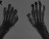claw hands: destruction/concentric diaphyseal remodelling of phalanges of right hand