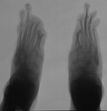diffuse atrophy with fusion of tarsals: concentric diaphyseal remodelling/destruction of phalanges: concentric diaphyseal remodelling of metatarsals