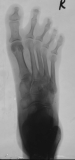 destruction of distal phalanges and lateral deviation of toes 2-5