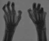 claw hands: loss of all phalanges Ray 5 of both hands: