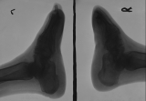 clubbing of right foot, left less damaged: destruction and loss of phalanges: absorbtion and rounding of calcaneus on Right foot