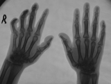 early clawing of right hand
